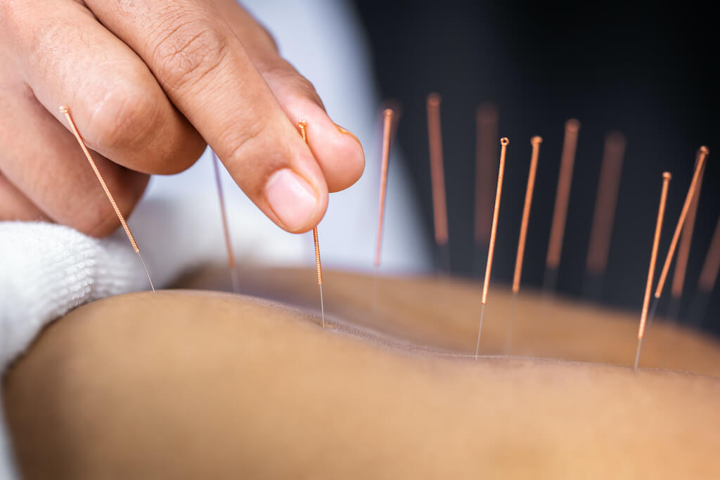 acupuncture-therapy